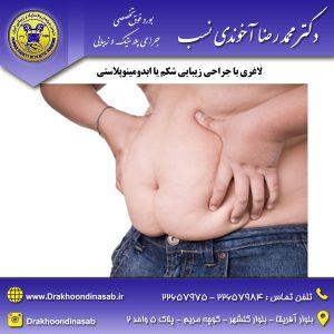 جراحی شکم