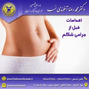 اقدامات قبل از جراحی شکم