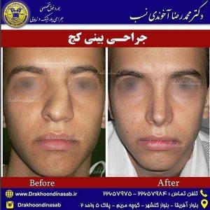 درمان کجی بینی