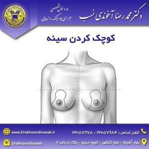 کوچک کردن سینه