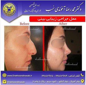 عمل-جراحی-زیبایی-بینی