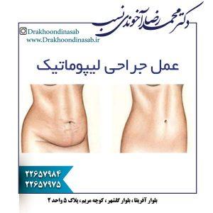 عمل جراحی لیپوماتیک