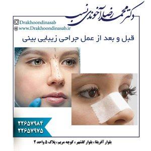 قبل و بعد از عمل جراحی زیبایی بینی