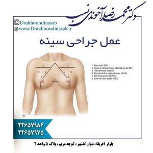 عمل جراحی سینه