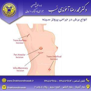 انواع برش در جراحی پروتز سینه