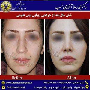 جراح بینی در تهران