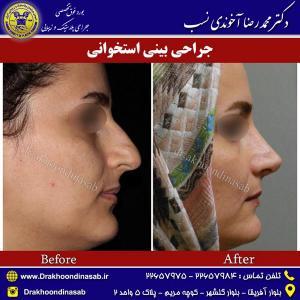 جراحی-بینی-استخوانی-5