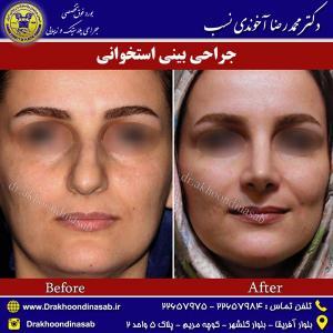 جراحی-بینی-استخوانی-6