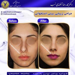جراحی بینی استخوانی 30