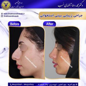 جراحی بینی استخوانی 31