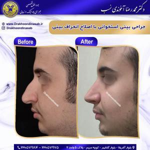 جراحی بینی استخوانی 34