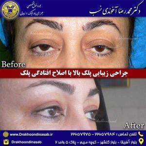 جراحی-زیبایی-پلک-بالا-2