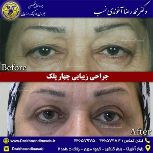 جراحی-زیبایی-چهار-پلک-2