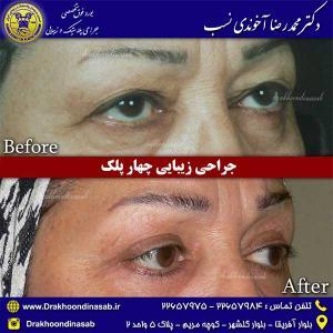 جراحی-زیبایی-چهار-پلک-3
