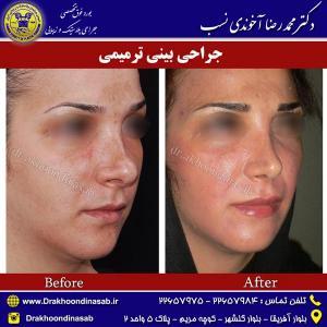 جراحی-بینی-ترمیمی-2