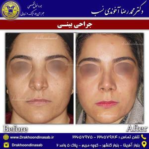 جراحی بینی 52
