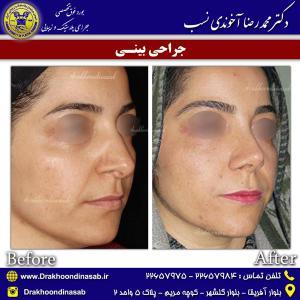 جراحی بینی 53