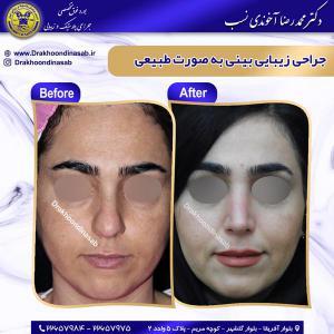 جراحی بینی 61
