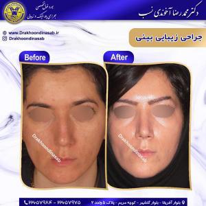 جراحی بینی 65