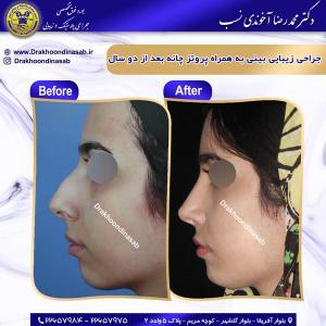 جراحی بینی 66