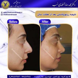جراحی زیبایی بینی 11