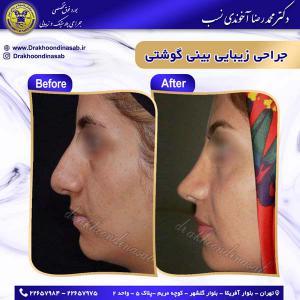 جراحی زیبایی بینی 7