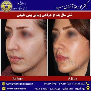 جراحی-بینی-طبیعی-10