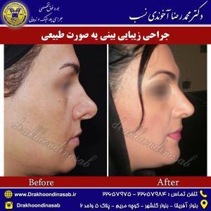 جراحی-بینی-طبیعی-2