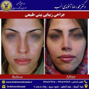 جراحی-بینی-طبیعی-3