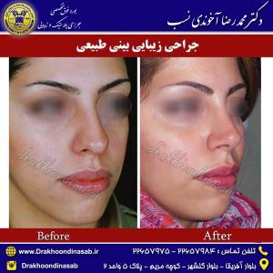 جراحی-بینی-طبیعی-4