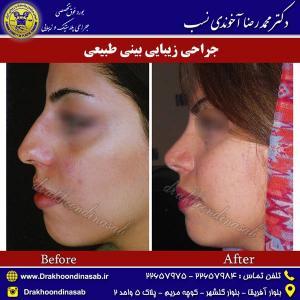 جراحی-بینی-طبیعی-5