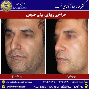جراحی-بینی-طبیعی-6