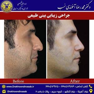 جراحی-بینی-طبیعی-7