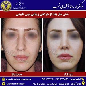جراحی-بینی-طبیعی-8