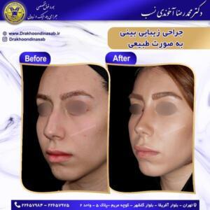 جراحی بینی طبیعی 53