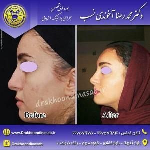 بهترین جراحی بینی