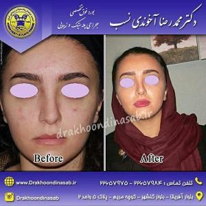 بهترین جراح بینی