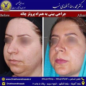 جراحی-بینی-به-همراه-پروتز-چانه-2