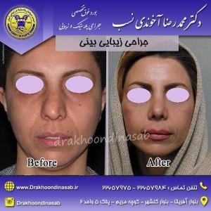 جراحی بینی خانمها