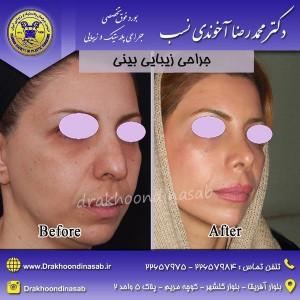 جراحی بینی خانمها 2