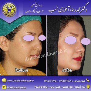 جراحی بینی طبیعی