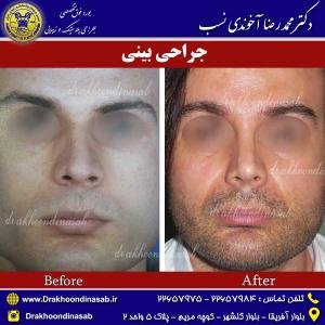 جراحی بینی 13