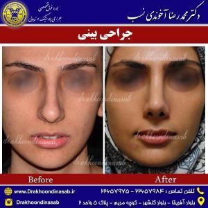 جراحی بینی 15