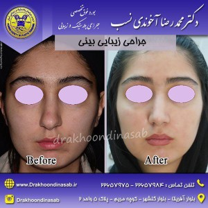 جراحی زیبایی بینی معمولی