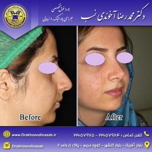 جراحی کجی بینی
