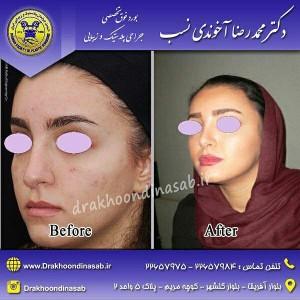 نمونه عکس جراحی بینی
