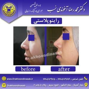 دکتر محمدرضا آخوندی نسب - راینوپلاستی